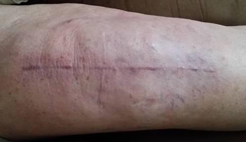 12 week knee.jpg