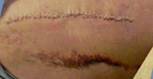 2015-11-03 hip scar 2.jpg