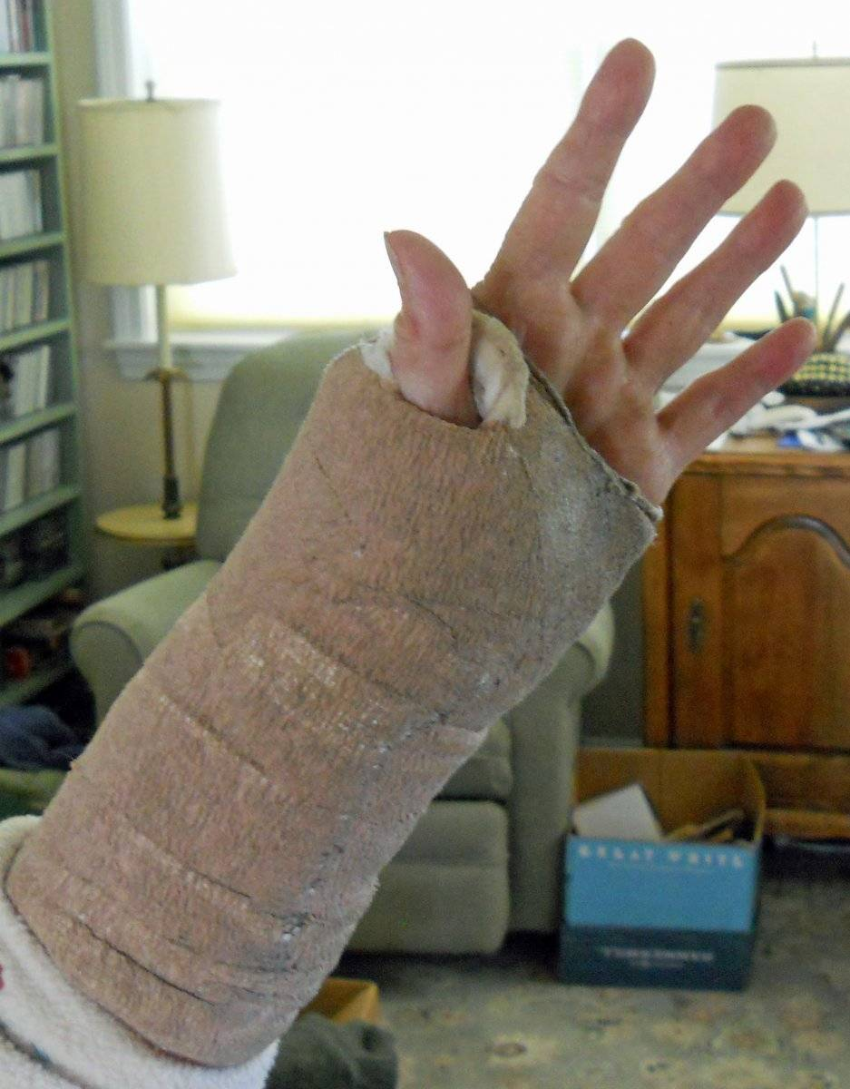 2020 June 1 S's left hand with post surgery wrapping, palm view.jpg