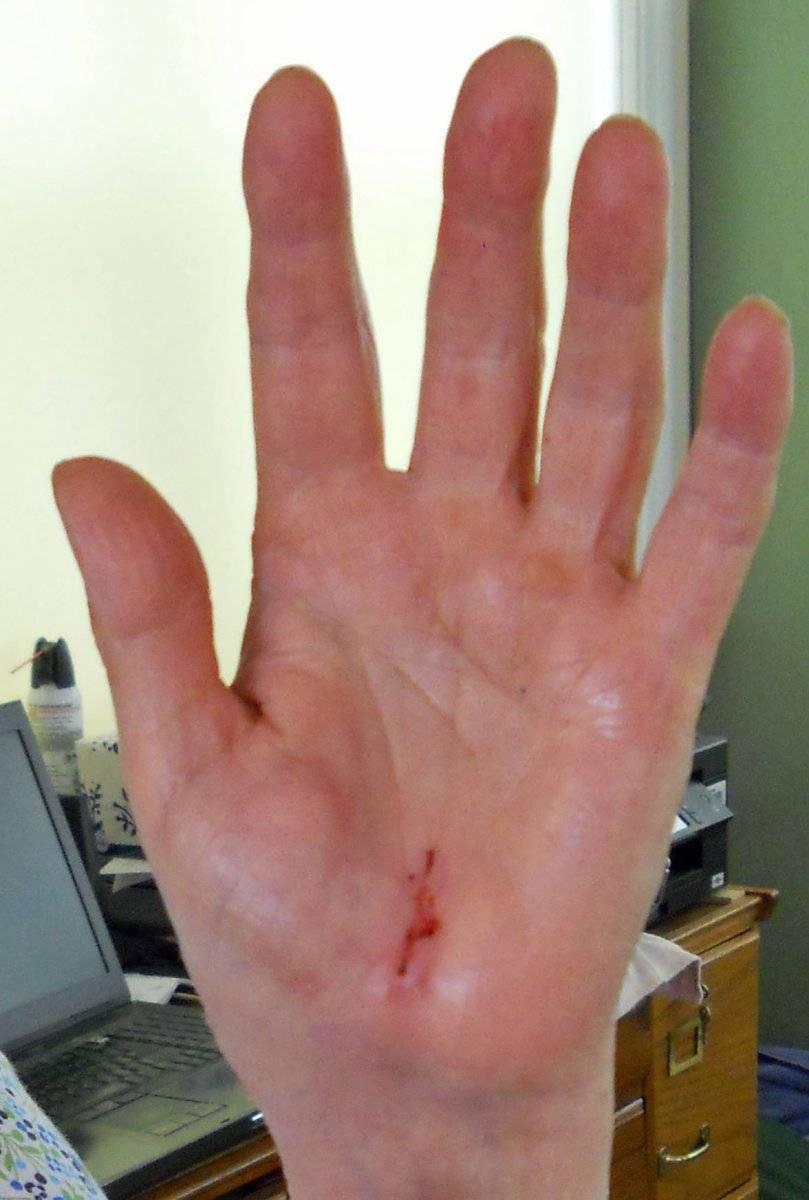 2020 June 2 S's left hand palm view scar.jpg