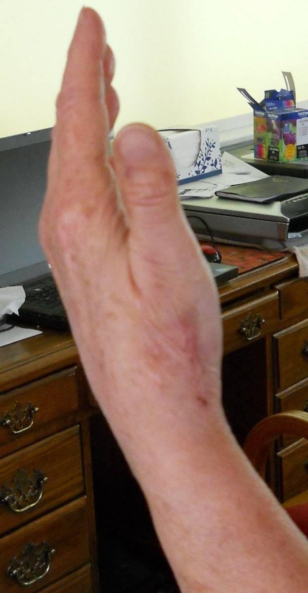 2020 June 2 S's left hand side view scar.jpg