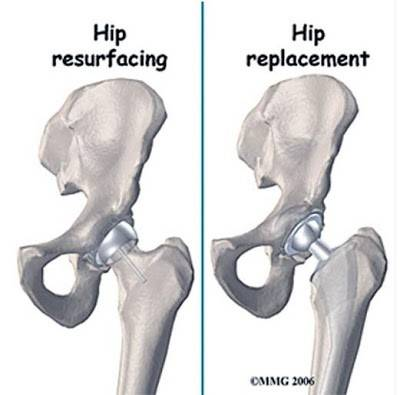 Birmingham Hip Resurfacing  Knee & Hip Replacement. Airport In Paris France Order To Cash Process. Mine Engineering Schools Water Damage Service. Email T Mobile Customer Service. Online Accredited Phd Programs. American College Of Healthcare Executives. Small Gift Bags Wholesale Cost Of Pods Moving. Business Website Wordpress Online Aa Classes. T Mobile Bill Information Software For Mobile