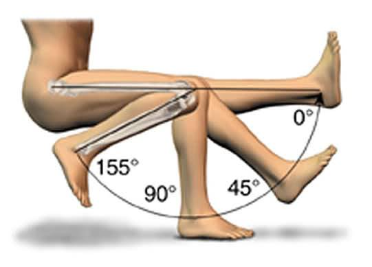 relationship of angle and knee problems in females