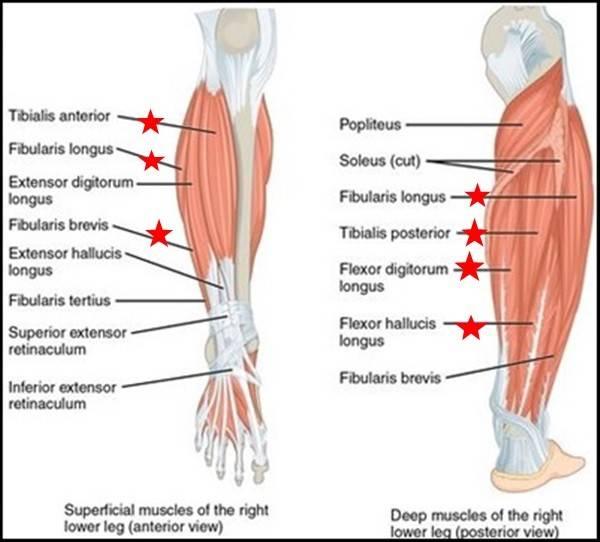Shin Splints Shin Pain  partment Syndrome