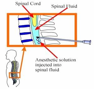awww.macllp.com_images_spinal.jpg