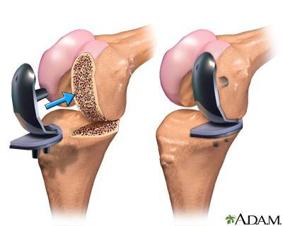 Knee Replacement Surgery Types And Suggested Videos