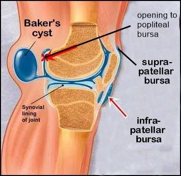 Bakers cysts and other knee bursae joint replacement patient forum it can be a mistake as its in an extremely difficult area to access difficult to get at the bursa and what surgeons in my younger days ccuart Gallery