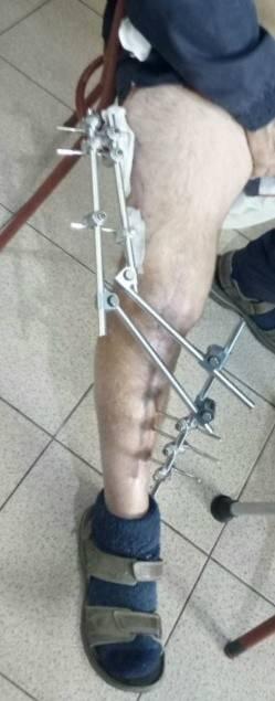 Barry leg brace.jpg