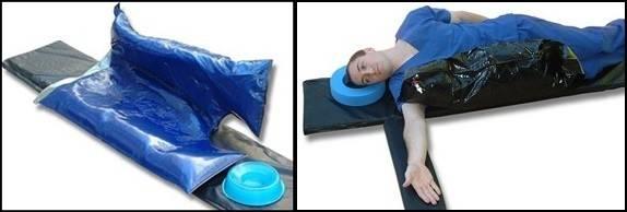 Meralgia Paresthetica Knee Amp Hip Replacement Patient Forum