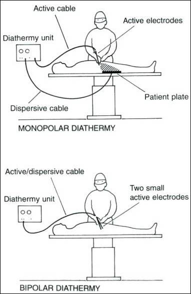 diathermy.jpg