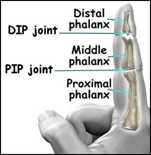 finger_arthroplasty_anat02.jpg