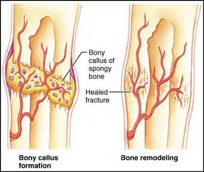 fracture healing.JPG