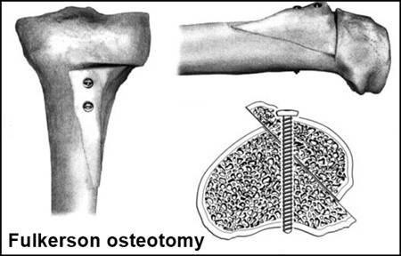 Fulkerson osteotomy.jpeg