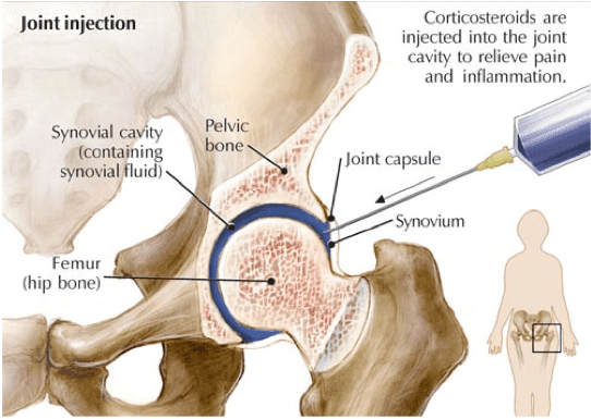 Hip Injections And Why They Need To Be Done In Hospital
