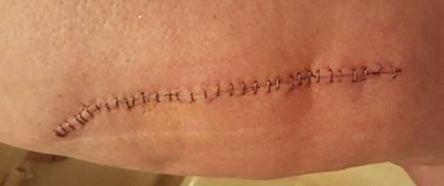 hip scar 12days.jpg