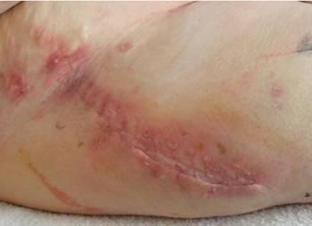 hip wound Rivaroxaban sm.JPG