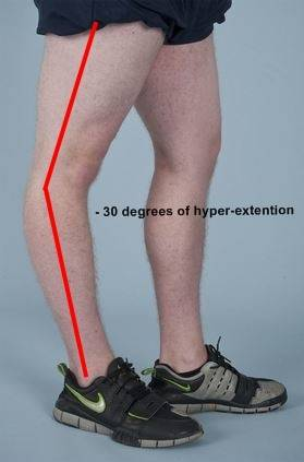 Rom Range Of Motion Information Knee Amp Hip Replacement