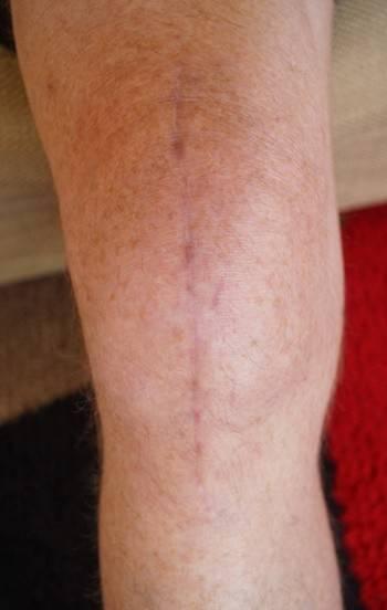knee 2.jpg