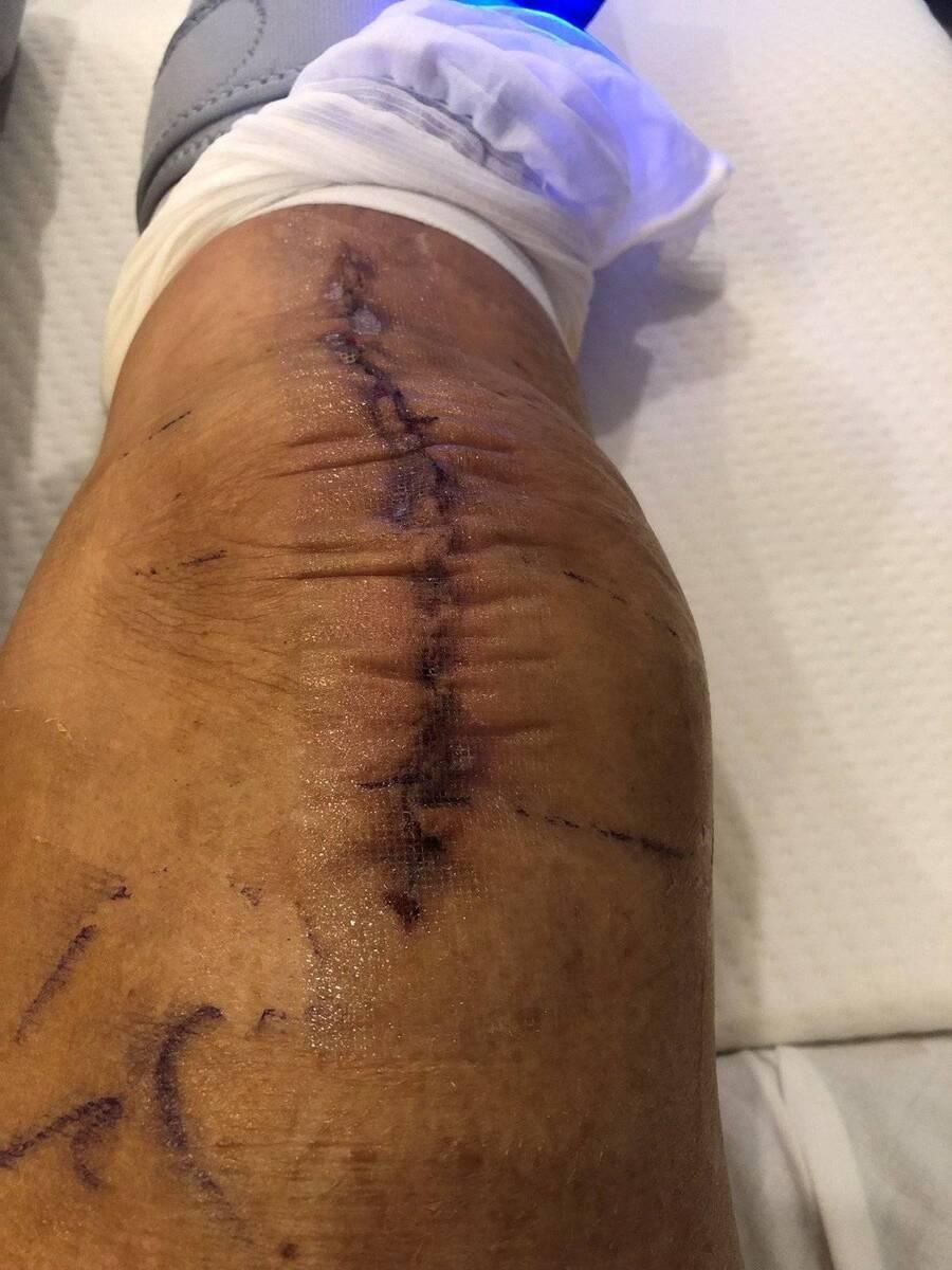 Knee Day 1.jpg