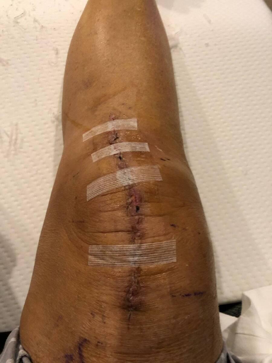 Knee Day 14.jpg