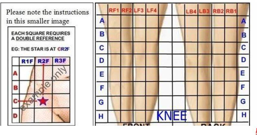 Knee pain location graph..JPG