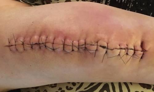 Knee replacement 2018.jpg