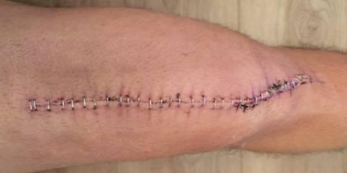 Knee Scar Day 10.jpg