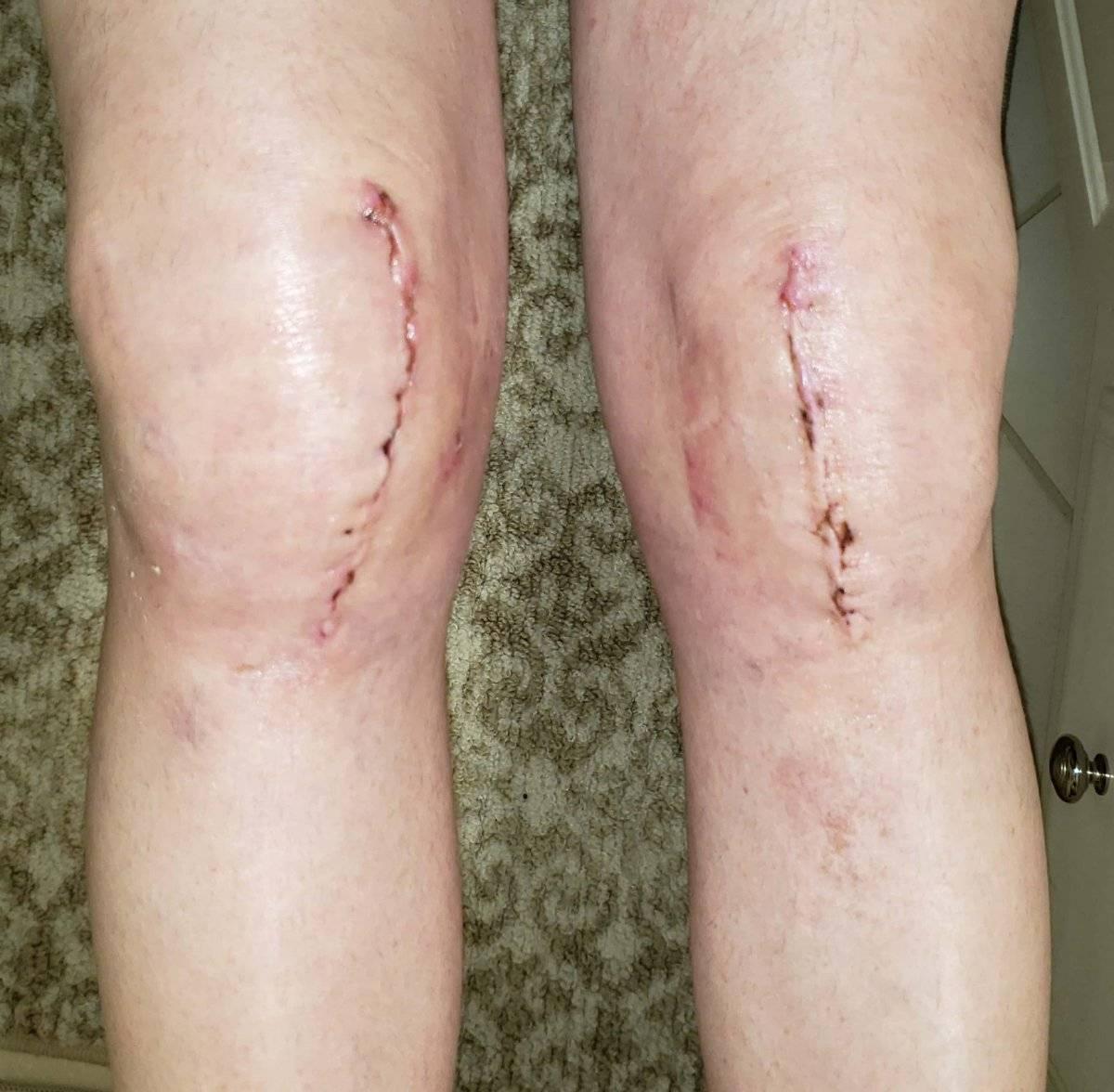knees 2020-07-02.jpg