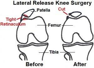 lateral-release300.jpg