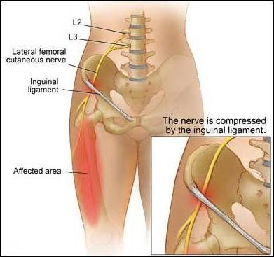 Thigh Muscle Pain After Hip Replacement Surgery Direct