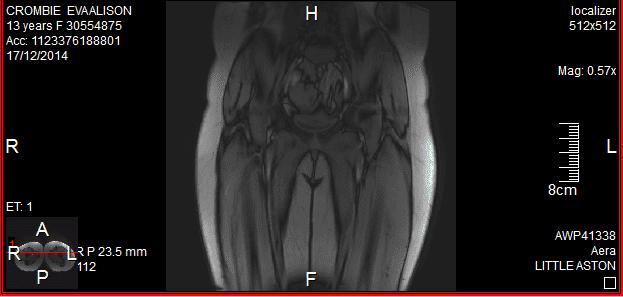 MRI3.png