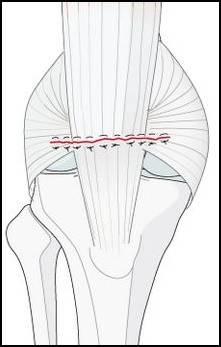 patellectomy repair.JPG