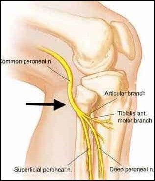 peroneal-nerve-leg-pain-jpg.jpg