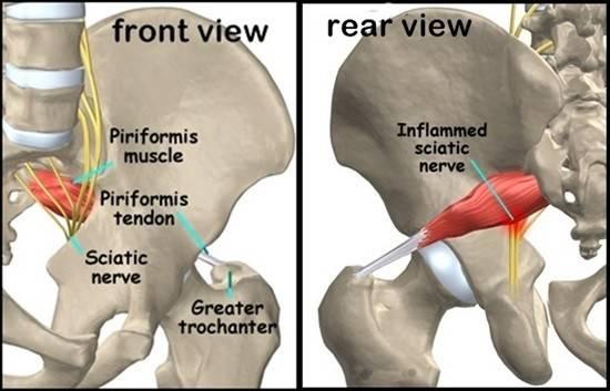Piriformis syndrome | Knee