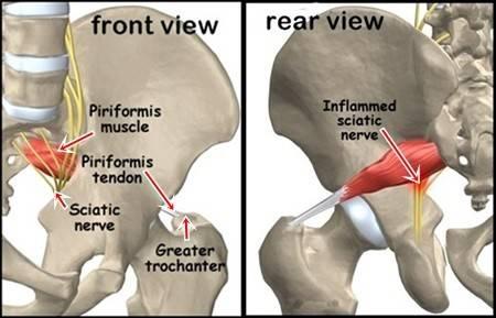 piriformis_anatomy01-horz.jpg
