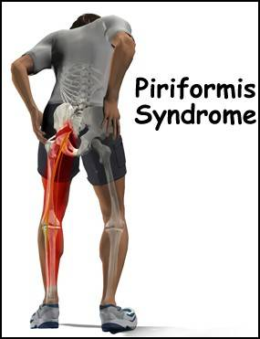 Piriformis Syndrome A Pain In The Butt