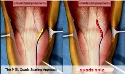 quads sparing MIS.JPG