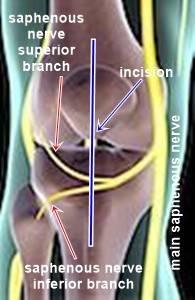 saphenous nerve at knee a.jpg