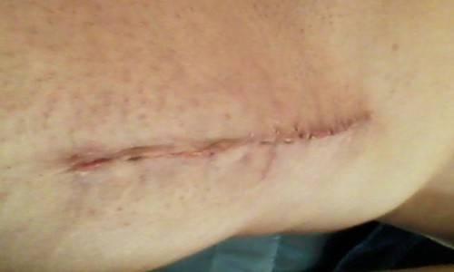 scar 15 days.jpg