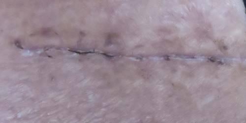 scar2.jpg