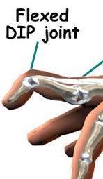 swan necked deformity.JPG