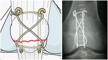 tension band wiring patella 1-horz.jpg