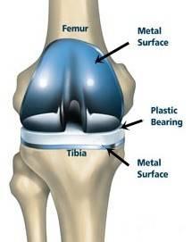total knee in place.jpg