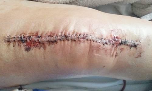 Total Knee Replacement.jpg
