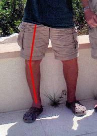varus deformity.jpg