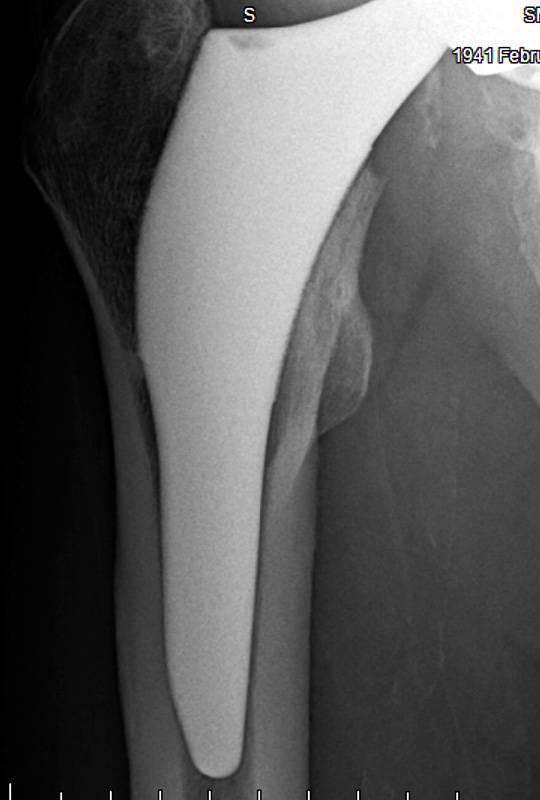 X-Ray 3-11-2019 Frontal.jpg