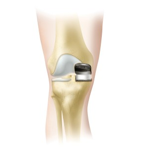 Oxford Partial Knee (Biomet)
