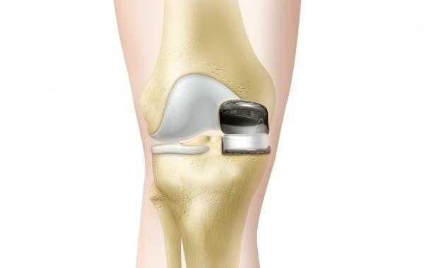 Knee Resurfacing Partial Knee Replacement Surgery Operation