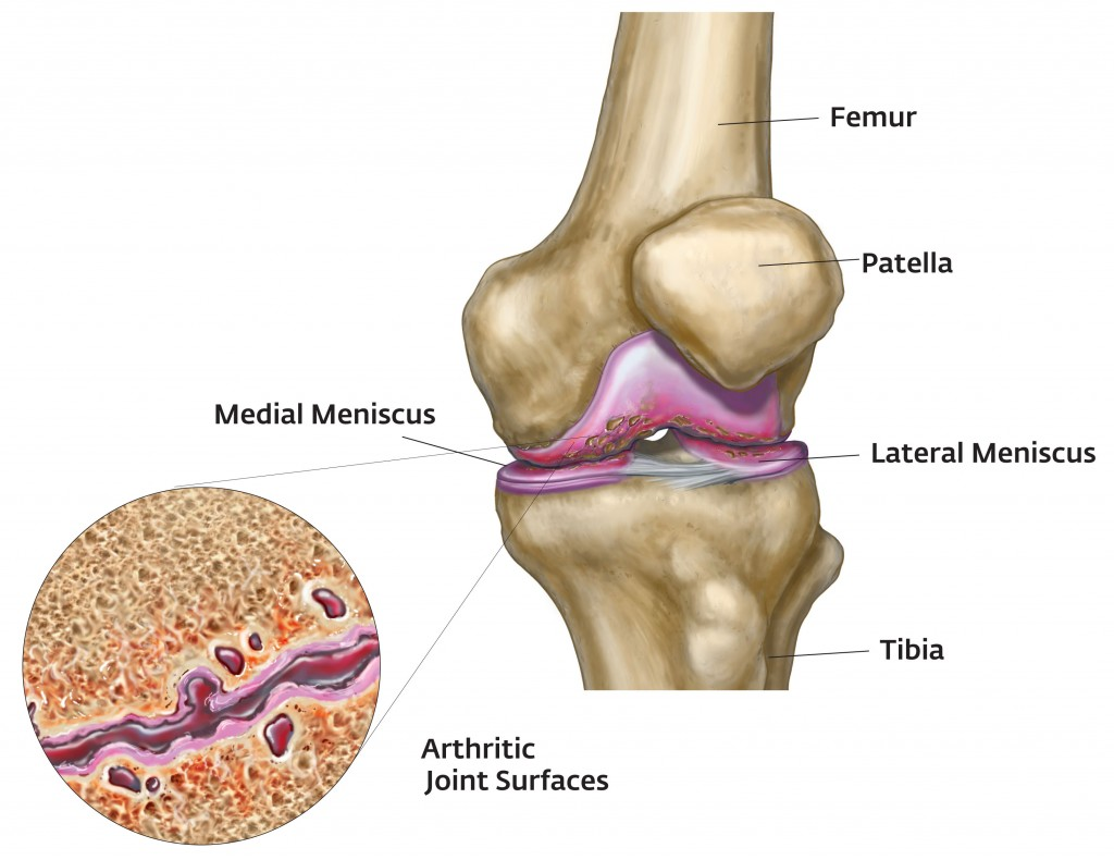 Arthritic Knee Joint