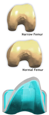 Narrow Femur vs. Normal Femur (MicroPort Orthopedics)